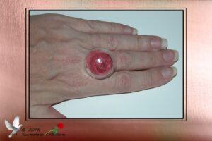 Bijou fantaisie - Bague dôme en verre remplie de micro billes rouge